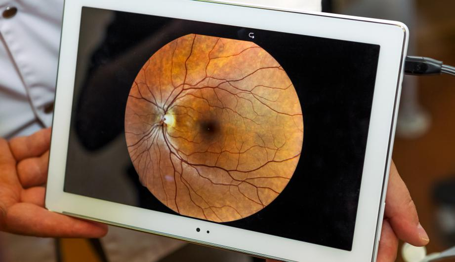 image of a retinal scan