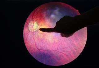 Retina isolated